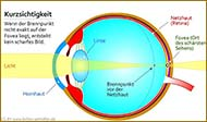 : Myopia (nearsightedness)